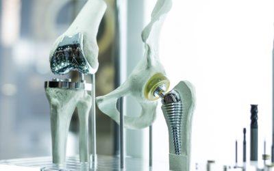 Prothése orthopédique